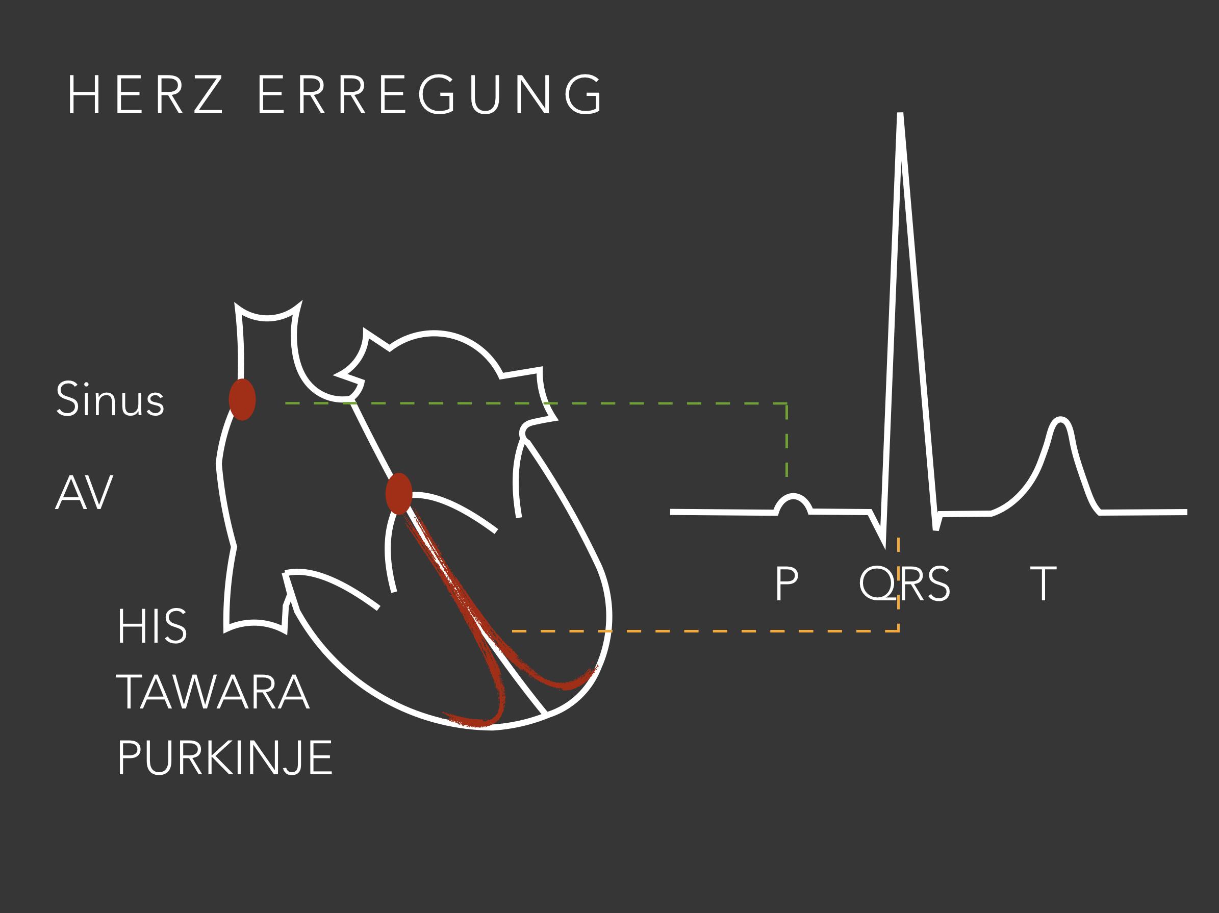 EKG im Notfall: Basics! – Nerdfallmedizin.de