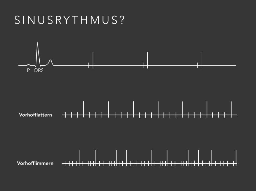 Sinusrhythmus.png